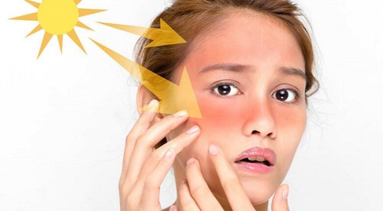 درمان آفتاب سوختگی,درمان آفتاب سوختگی با مواد طبیعی,درمان آفتاب سوختگی پوست