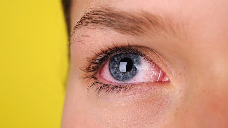 خطر لنز,خطر لنز برای چشم,خطر لنز چشم