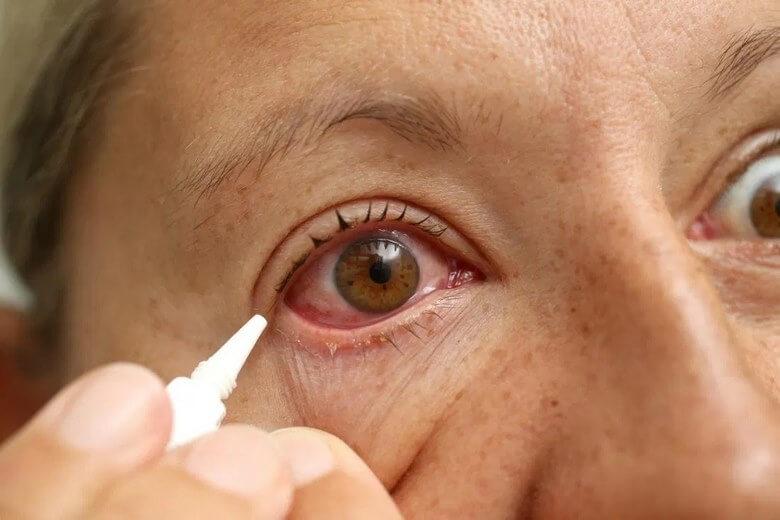 خطرات لنز,خطرات لنز چشم,خطرات لنز گذاشتن