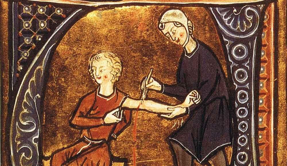 ترسناک ترین عمل های جراحی تاریخ,ترسناک ترین عمل های پزشکی,ترسناک ترین عمل های پزشکی تاریخ
