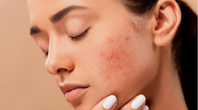 مشکل پوستی,مشکلات پوستی,مشکلات پوستی صورت