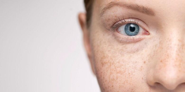 مشکل پوستی,مشکلات پوستی,مشکلات پوستی صورت,